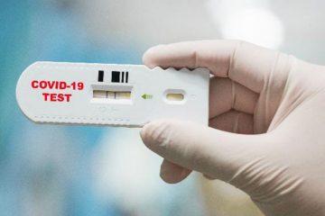 Hospital Ribeirânia oferece teste da Covid-19 em sistema Drive-Thru
